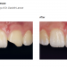 Class IV Case using Evanesce Dentistry and photography courtesy of Dr. Daniele Larose