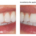 Clinical Research Dental Gallery Image